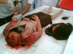 http://www.faithfreedom.org/Articles/beheaded_girl.jpg