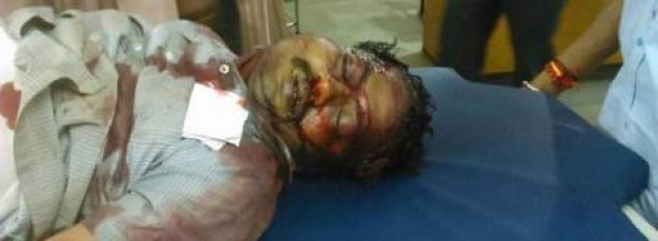 Islamic Violence ripped Shimoga (India), Killing 1 brutally and injuring several